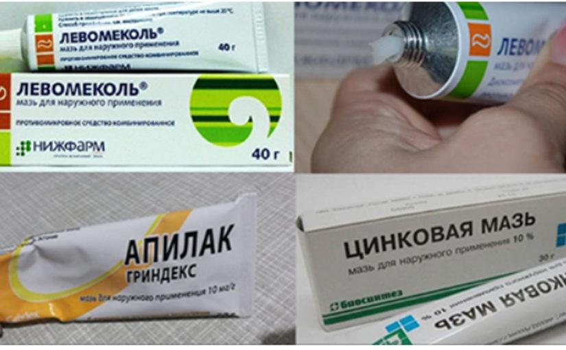 Недорогие эффективные мази из аптеки, о которых мы незаслуженно забыли!