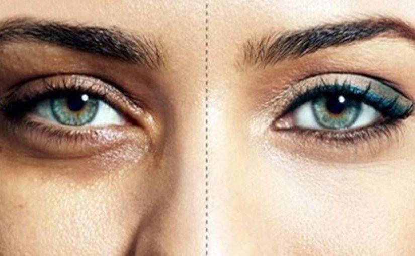 Как правильно замаскировать темные круги под глазами
