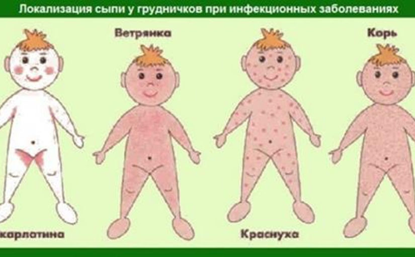 10 детских болезней, которые должны уметь отличать все родители