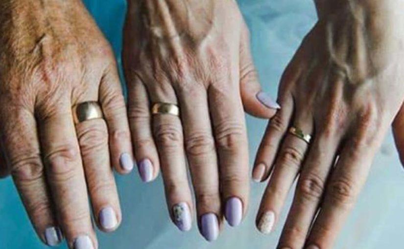 Как решить проблему с кожей рук